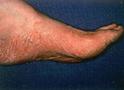 Thumbnail of Athlete's Foot