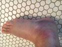 Thumbnail of Ankle Sprain