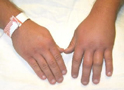 Thumbnail of Bee Sting of Left Hand
