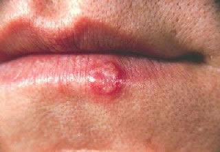 Cold Sore of Lower Lip