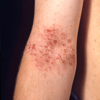 Eczema - Adolescente