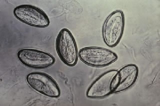 Pinworm Eggs Under a Microscope
