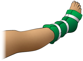 First Aid - Splint for Ankle Injury