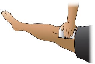 Primeros Auxilios: Hemorragia en Una Pierna