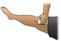 Thumbnail of First Aid - Bleeding Leg