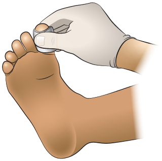 Primeros Auxilios: Hemorragia en Un Dedo del Pie