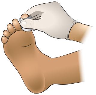 First Aid - Bleeding Toe