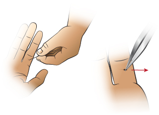 First Aid - Removing a Splinter