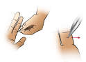 Thumbnail of First Aid - Removing a Splinter