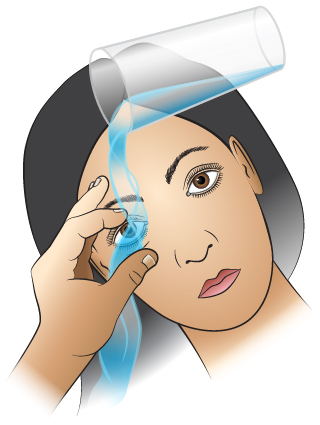First Aid - Many Particles in Eye