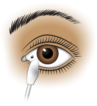First Aid - Foreign Object in Corner of Eye