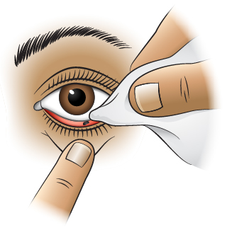 First Aid - Foreign Object Under Lower Eyelid