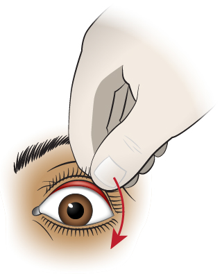 First Aid - Foreign Object Under Upper Eyelid