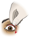 Thumbnail of First Aid - Foreign Object Under Upper Eyelid