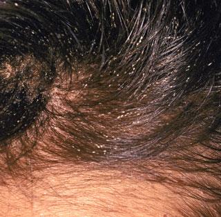 Head Lice - Nits