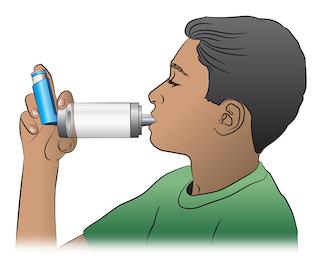 Cómo utilizar un inhalador dosificador con espaciador