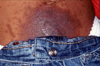 Reacción alérgica al níquel