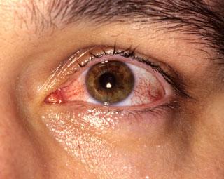 Conjuntivitis viral (ojo rosado)