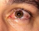 Thumbnail of Conjunctivitis - Viral (Pink Eye)