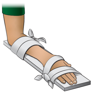 First Aid - Splint for Wrist Injury