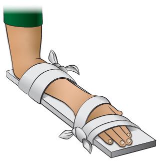 First Aid - Splint for Wrist Injury