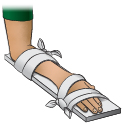 Thumbnail of First Aid - Splint for Wrist Injury