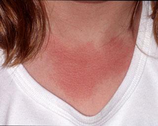 Sunburn - First Degree